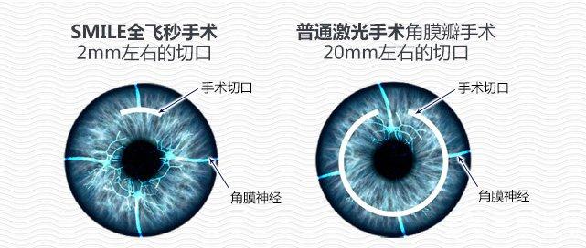 郑州做近视手术贵不贵?视光眼科手术费用多少钱?